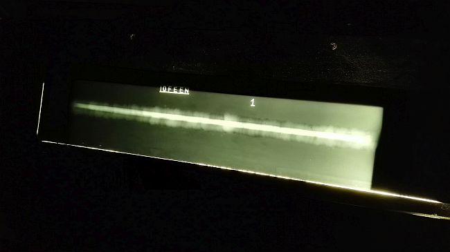 Ocena radiogramu przy pomocy negatoskopu.